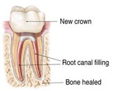 Rootcanal Retreatment Image 3