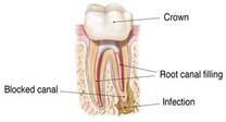 Rootcanal Retreatment Image 1