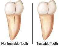 cracked teeth image 2