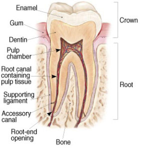 rootcanal treatment image 1