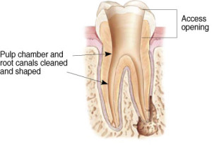 rootcanal treatment image 3