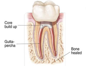 rootcanal treatment image 5